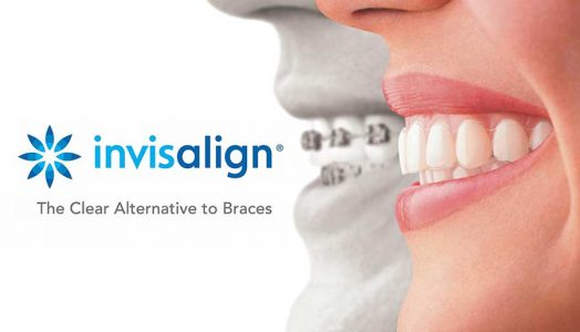 Tannregulering på Nesodden - Invisalign